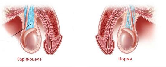 Развитие мужского варикоза