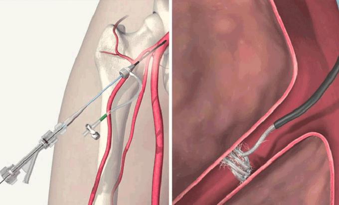 Склеротерапия и эмболизация