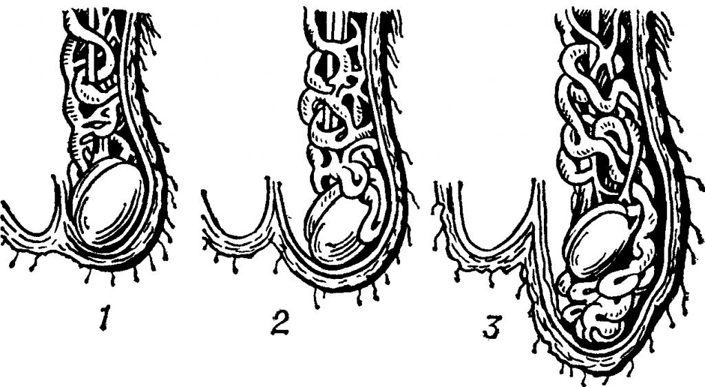 Левостороннее варикоцеле у мужчин