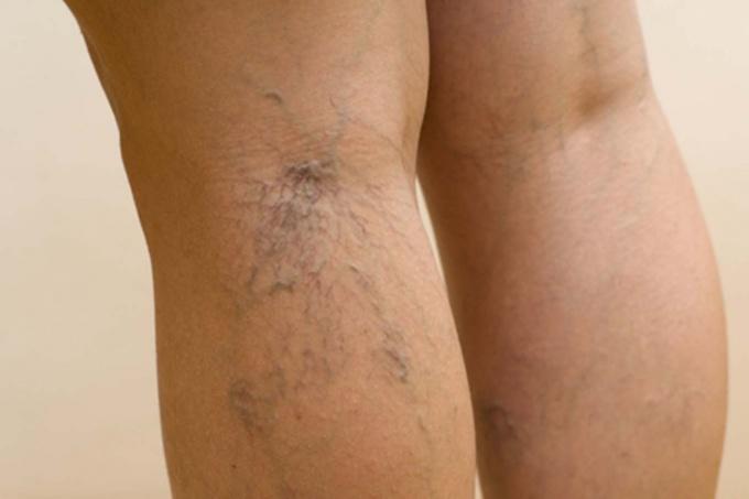 Венозная патология ног