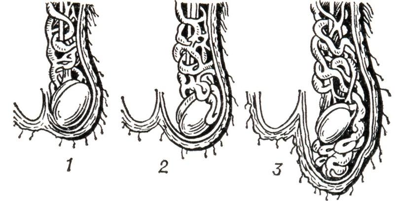 Стадии варикоцеле