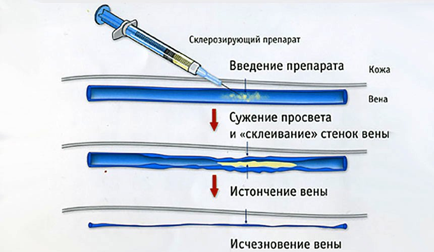 Флебосклерозирующие препараты