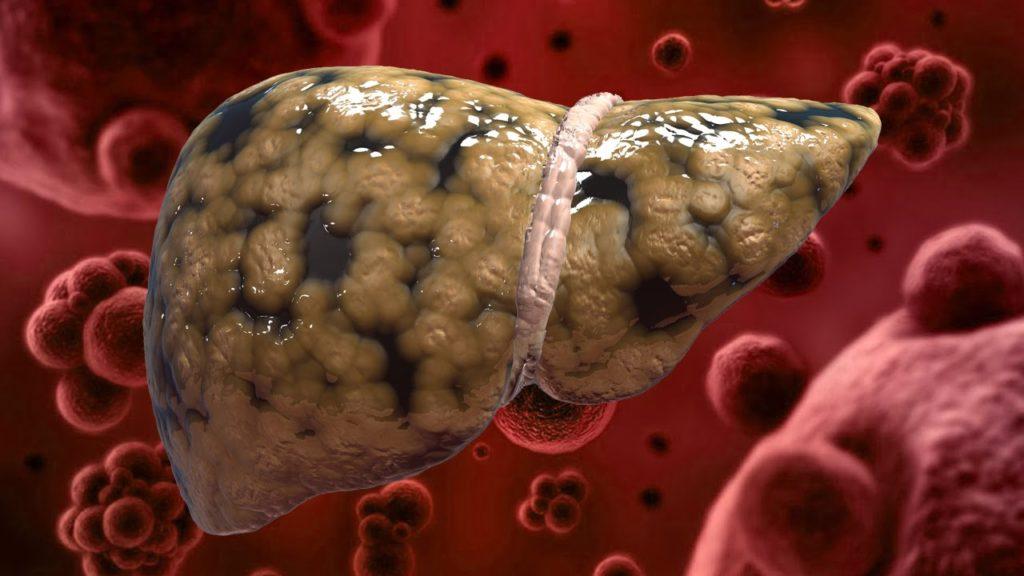 Гепатотоксическое воздействие на печень