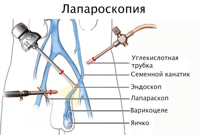 Лапароскопия