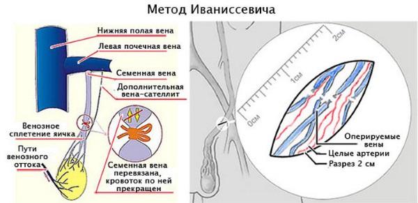 Методика Иваниссевича