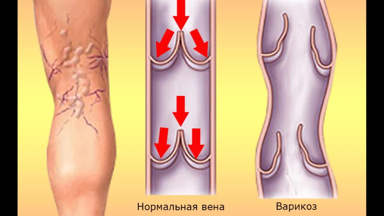 Проблемы с варикозом