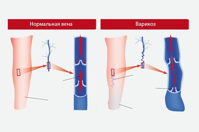 Расширение вен при варикозе