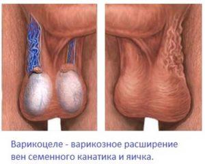 Расширенные вены вокруг яичника