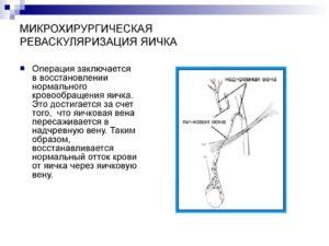 Реваскуляция яичка