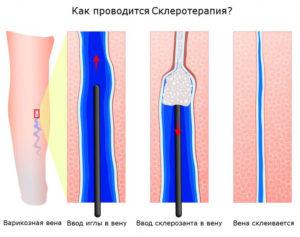 Склеротерапия артерий