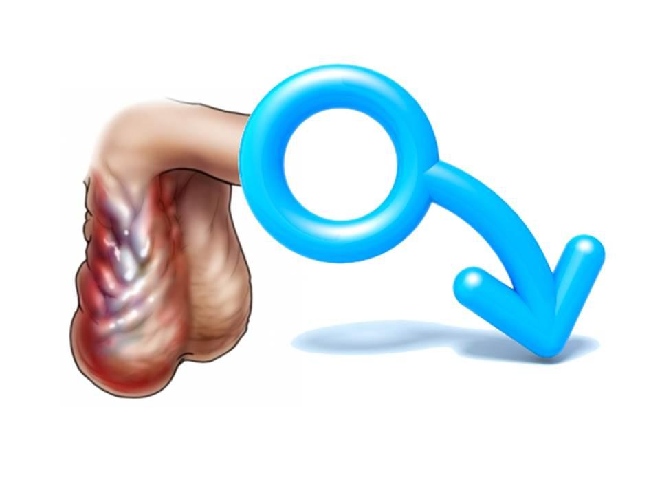 Снижения половой функции
