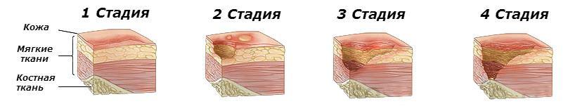 Стадии развития трофической язвы