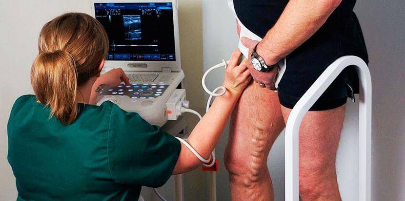 Ультразвуковое ангиосканирование