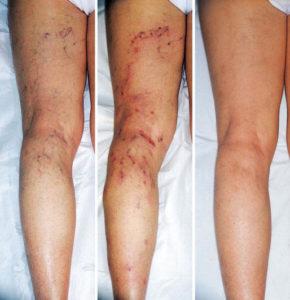 Варикоз – патология, которая развивается годами