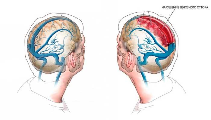 Венозная дисциркуляция головного мозга