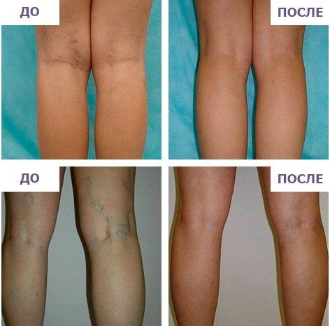 Уколы в вены при варикозене оставляют шрамов