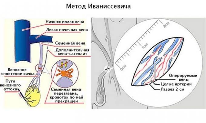 Открытая классическая операция по Иванисевичу