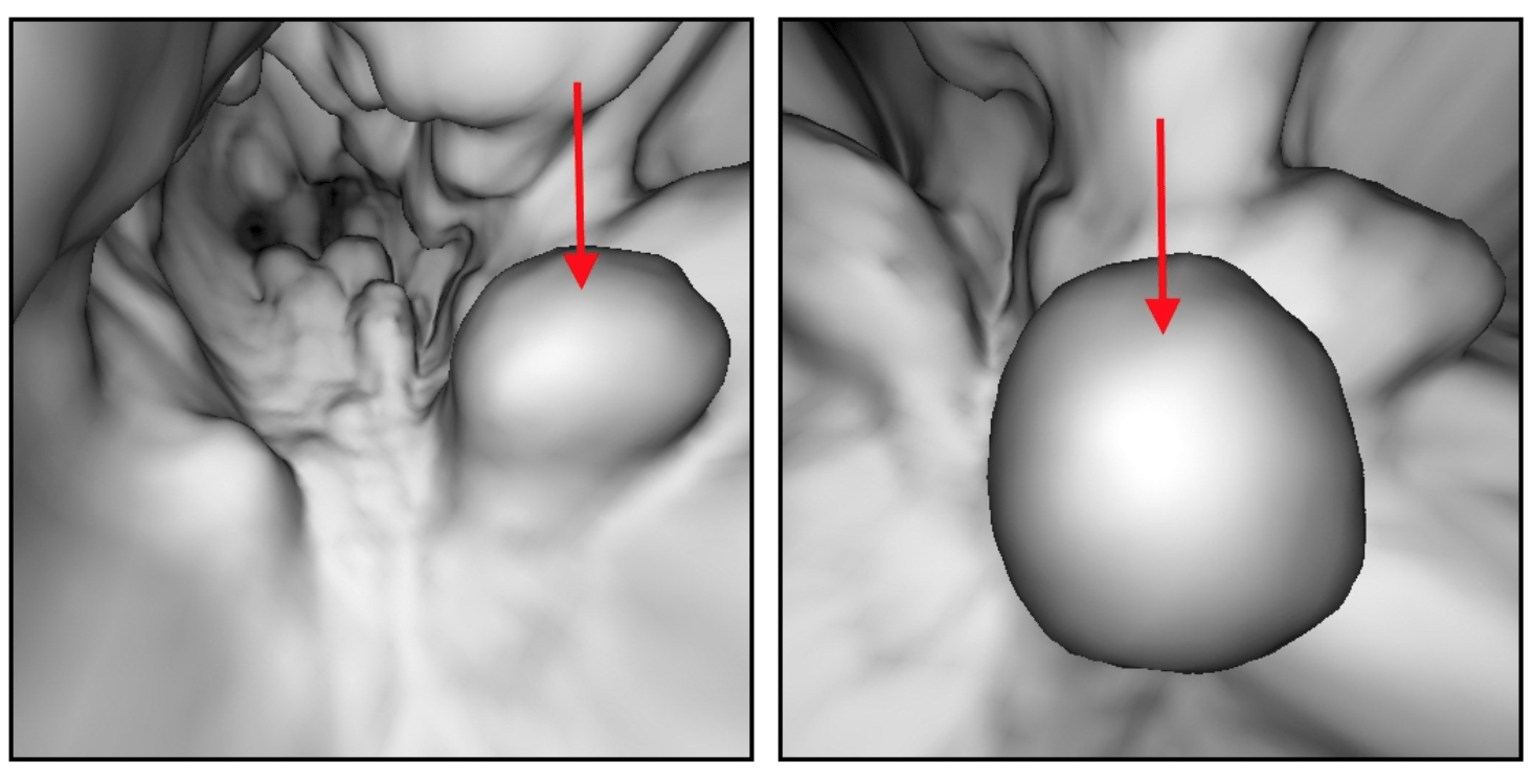 Эндоскопическая расширение вен пищевода