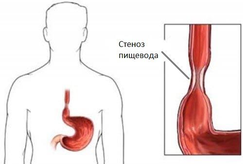 Пептический эзофагит