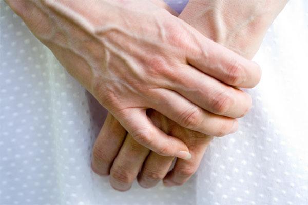 Варикоз рук