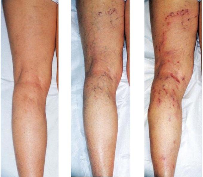 Варикозный дерматит нижних конечностей