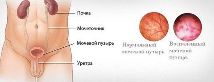 Воспалительные изменения в организме при цистите