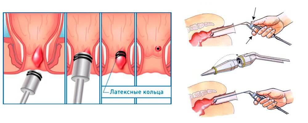 Устранение геморроидальных узлов с помощью латексных колец