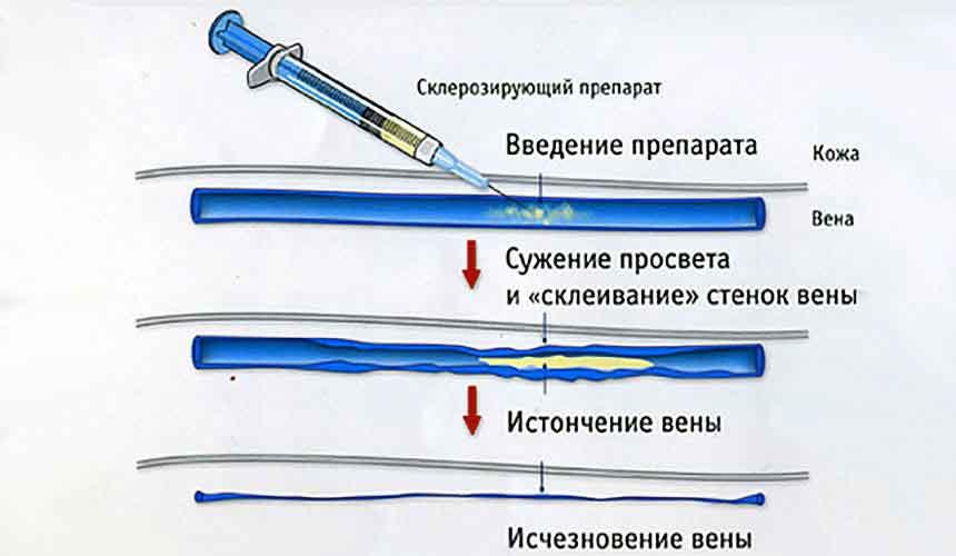 Склеротерапии