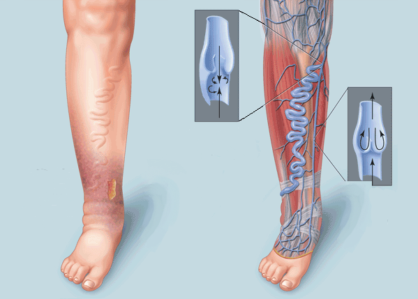 Хроническая венозная недостаточность ног