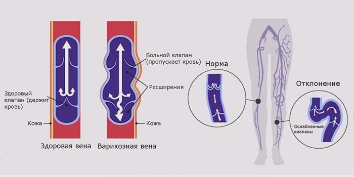 Оценка прохождения крови по венам нижних конечностей