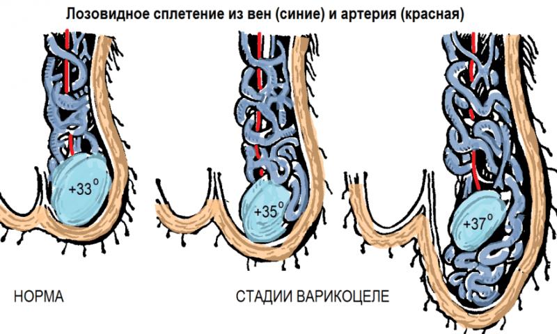 Развитие варикоцеле