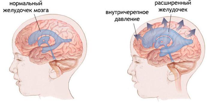 Повышенное внутричерепное давление у ребенка