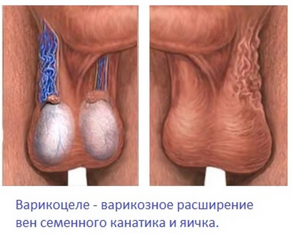 Варикозные вены семенного канатика