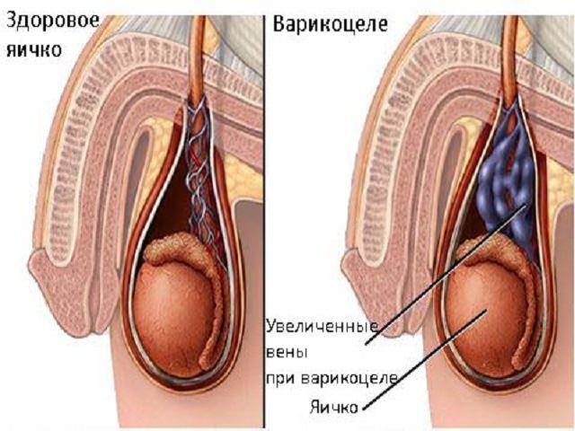 Третья стадия варикоза