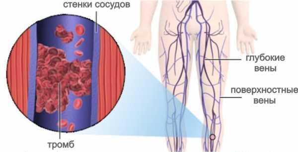 Капсулы Троксевазина влияют на капилляры и вены