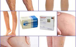 Важность Венотоников при варикозе ног