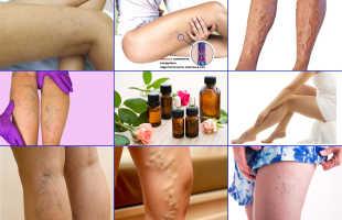 Лечение варикозного расширения вен эфирными маслами