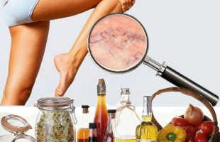 Способы лечения варикозного расширения вен на ногах в домашних условиях