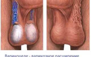 Влияние варикоцеле на потенцию