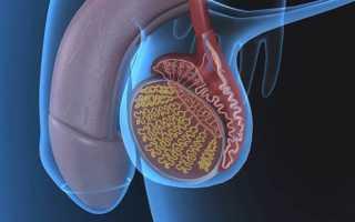 Методы лечения варикоцеле третьей степени
