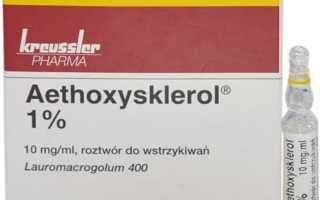 Особенности применения препарата Этоксисклерол при варикозном расширении вен