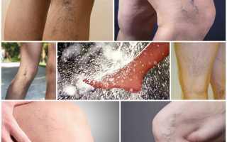Показания к выполнению процедуры контрастный душ при варикозе