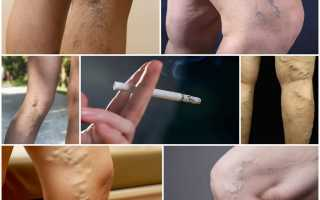 Как влияет курение на организм и сосудистую систему человека?