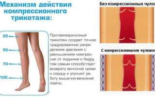 Инструкция по выбору компрессионного белья при варикозе