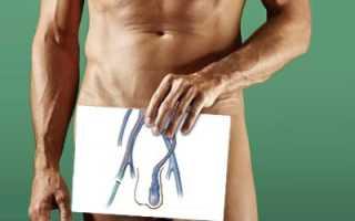 Какие осложнения после операции варикоцеле?