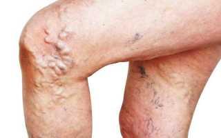 Способы справиться с осложнениями варикозной болезни вен нижних конечностей