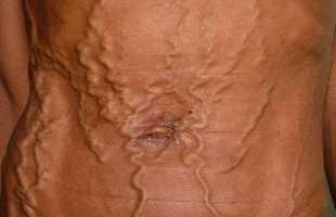 Стадии варикозного расширения вен пищевода