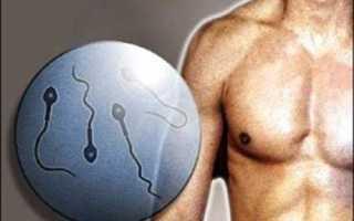 Как влияет варикоцеле у мужчины на бесплодие и как этого избежать?