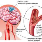 Атеросклероз, нарушение мозгового кровообращения