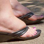 Частая отёчность ног
